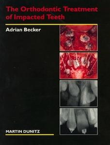 Скачать Ортодонтическое лечение ретенированных зубов - Адриан Бекер