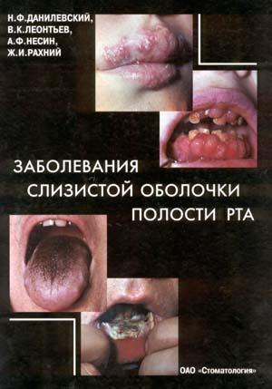 Скачать Заболевания слизистой оболочки полости рта - Данилевский