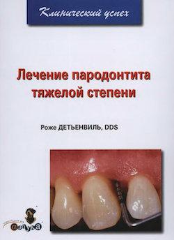 Скачать Лечение пародонтита тяжелой степени - Детьенвиль Роже