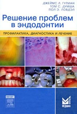 Решение проблем в эндодонтии - Гутман скачать