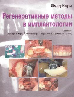 Скачать Регенеративные Методы в Имплантологии - Кури