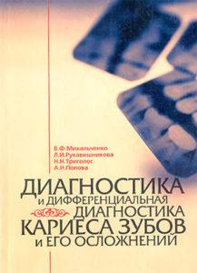 Скачать Диагностика и дифференциальная диагностика кариеса зубов и его осложнений Михальченко