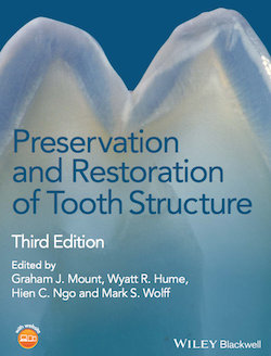 Download Preservation and Restoration of Tooth Structure - Mount Graham J., Hume Wyatt, Hien Ngo, Wolff Mark
