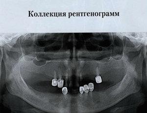 Скачать Коллекция рентгенограмм (Ортопантомограммы)
