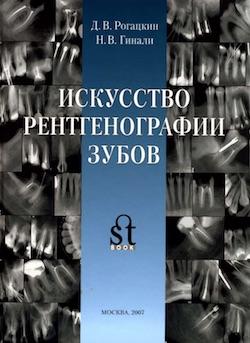 Скачать Искусство рентгенографии зубов - Рогацкин Д.В., Гинали Н.В. + Коллекция рентгенограмм