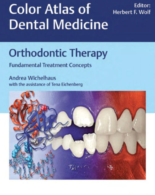 Download Orthodontic Therapy Fundamental treatment concepts Wichelhaus
