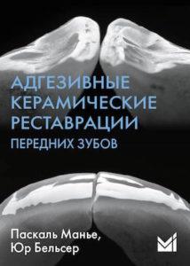 Скачать Адгезивные керамические реставрации передних зубов Паскаль Манье