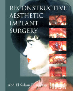 download Reconstructive aesthetic implant surgery Abd El Salam El Askary