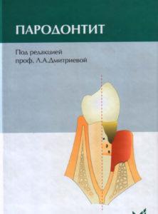 Скачать Пародонтит Дмитриева